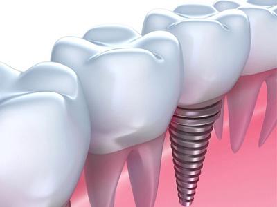 northridge dental implants