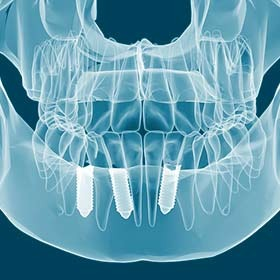 Root Canal Northridge